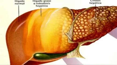 Photo of Remedio para sacar toda la grasa de un hígado graso en pocos dias