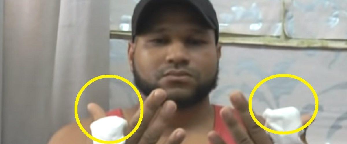 Cortan dos dedos de las manos a joven que fue secuestrado en Hato Mayor