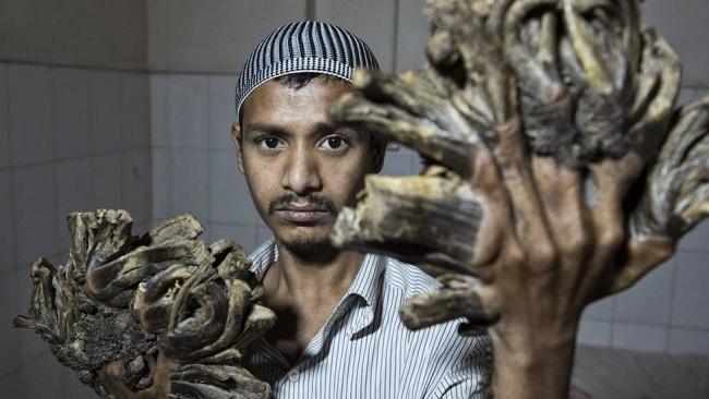 """Photo of El """"hombre árbol"""" de Bangladés pierde esperanza tras 20 operaciones"""