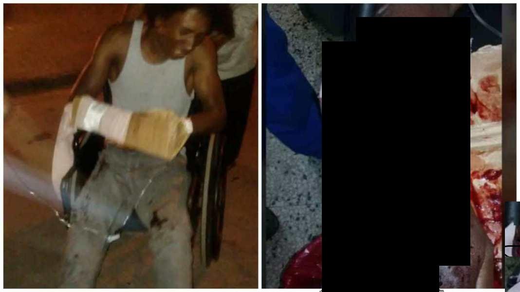 Photo of Joven puede perder brazo tras recibir balazo de Policía por estar cerca de una protesta