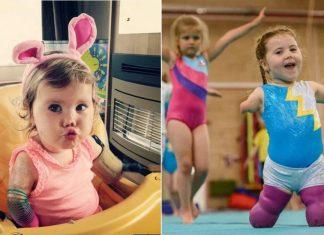 Photo of Niña se dedica a la gimnasia a pesar de perder las cuatro extremidades por meningitis