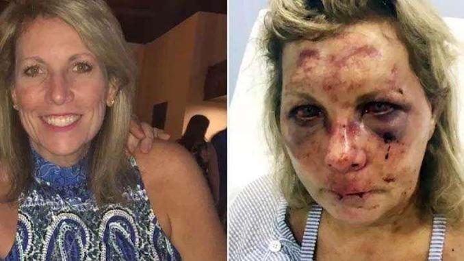 Photo of Turista víctima de brutal golpiza en resort de Punta Cana demanda por $3 millones
