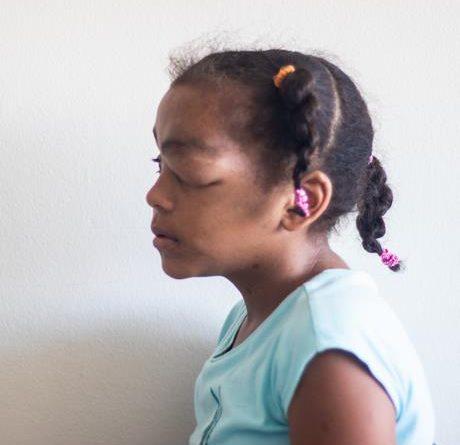 Photo of ESCARLA PEÑA NECESITA AYUDA ¿Qué se puede comprar con 279 mil pesos?, la salud y la felicidad de una niña con un tumor en un ojo