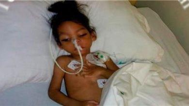 Photo of Solicitan ayuda para niño con microcefalia residente en Aguayo, SFM